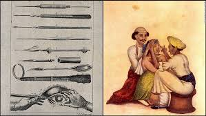 Ancient Eye Surgery